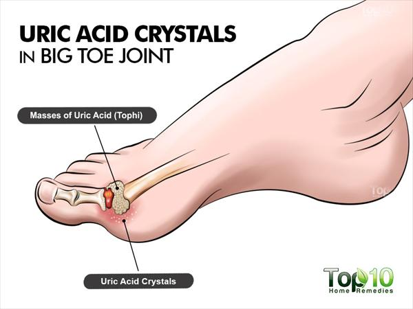 Stop Taking Pain Killers and Finally Treat Gout Uric-acid083