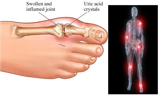 Uric Acid Kidney and Gout Remedies and 5 Simple Home Uric-acid95