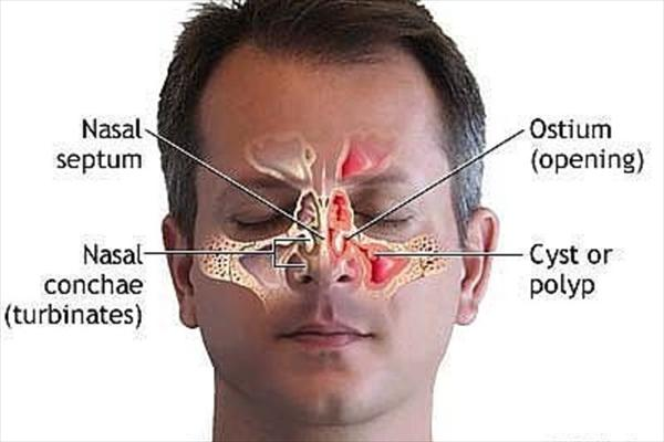 30% of All People Suffer from Sinus Infections Use-natural-cures-chronic-sinusitis-x