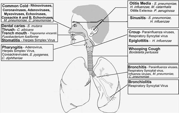 Diseases that Affect the Respiratory System: Bronchitis Uti