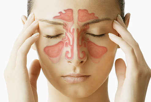 Sinus Pain Treatment Webmd-composite-image-of-sinuses14