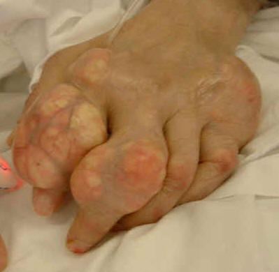 Gout and Tea and Causes of Gout What-causes-gout-to-flare-up2