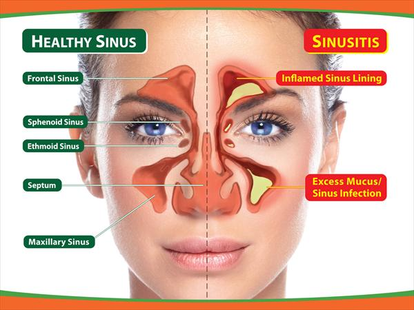 Sinusitis Esophagus and Symptoms and Causes of Sinus What-is-sinus-infection6