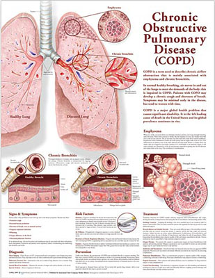 Bronchitis Health News and Detailed Information  Wk-f1