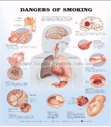 Dangers of Smoking Xl0