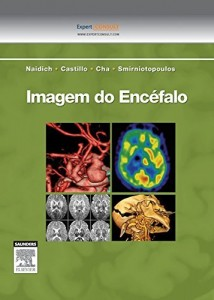 Baixar Imagem do Encefalo pdf, epub, ebook