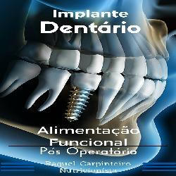 Baixar Implante Dentário Alimentação Funcional No Pós Operatório pdf, epub, eBook