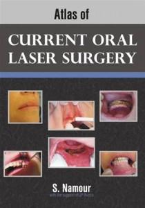 Baixar Atlas of current oral laser surgery pdf, epub, eBook