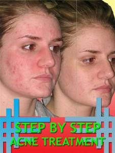 Baixar Step by step acne treatment pdf, epub, eBook
