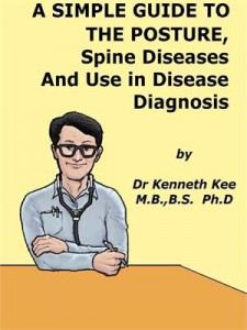 Baixar Simple guide to the posture, spine diseases pdf, epub, eBook