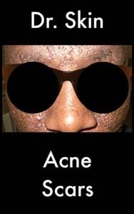 Baixar Acne scars pdf, epub, eBook