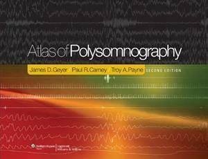 Baixar Atlas of polysomnography pdf, epub, ebook