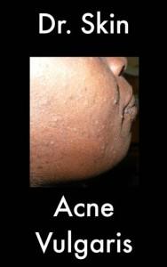 Baixar Acne vulgaris pdf, epub, eBook