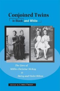 Baixar Conjoined twins in black and white: the lives of pdf, epub, eBook