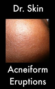 Baixar Acneiform eruptions pdf, epub, eBook