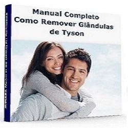 Baixar Guia Como Remover GT pdf, epub, eBook