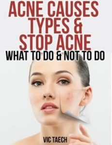 Baixar Acne causes types & stop acne: what to do & not pdf, epub, ebook
