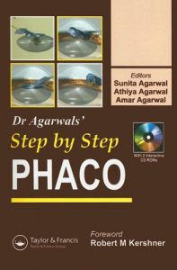 Baixar Phaco : step by step pdf, epub, eBook