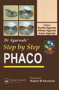 Baixar Phaco : step by step pdf, epub, ebook