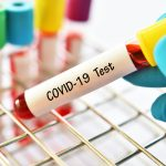 Coronavirus: Brazilian Start-up Contributes to Coronavirus War with Rapid Development of COVID-19 Test