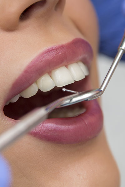 Should You Be Afraid To Get Dental Work In Mexico?