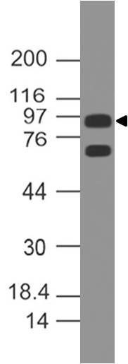 Monoclonal Antibody to hAndrogen receptor (Clone: ABM20C2)