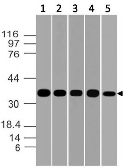 Figure-7: Western blot analysis of GAPDH. Anti- GAPDH antibody (Clone: ABM22C5) was used at 1 µg/ml on (1) h Brain, (2) m Brain, (3) h Pancrease, (4) h Kidney and (5) m Skeletal Muscle lysates.
