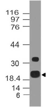 Monoclonal Antibody to ZIKA E protein (Clone: ABM5A43)