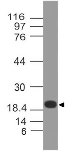 Monoclonal Antibody to ZIKA Envelope protein (Clone: ABM54D4)