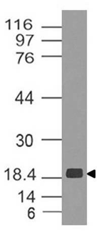 Monoclonal Antibody to ZIKA NS5  (Clone: ABM5G47)