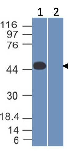 Monoclonal Antibody to SARS-CoV-2 Nucleocapsid  (Clone: ABM1F11.1E1)