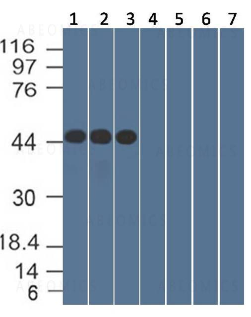 Figure-2: Western Blot analysis: The purified antibodies 1F11.1E1 was tested on Nucleocapsid Recombinant protein at different concentrations, 0.1 (lane 1), 0.5 (lane 2), and 1.0 μg/ml (lane 3), (4) RBD protein, (5)unrelated protein 1, (6) unrelated protein 2,  (7) unrelated protein 3, to detect the specific binding. 25 ng of proteins was loaded per lane.