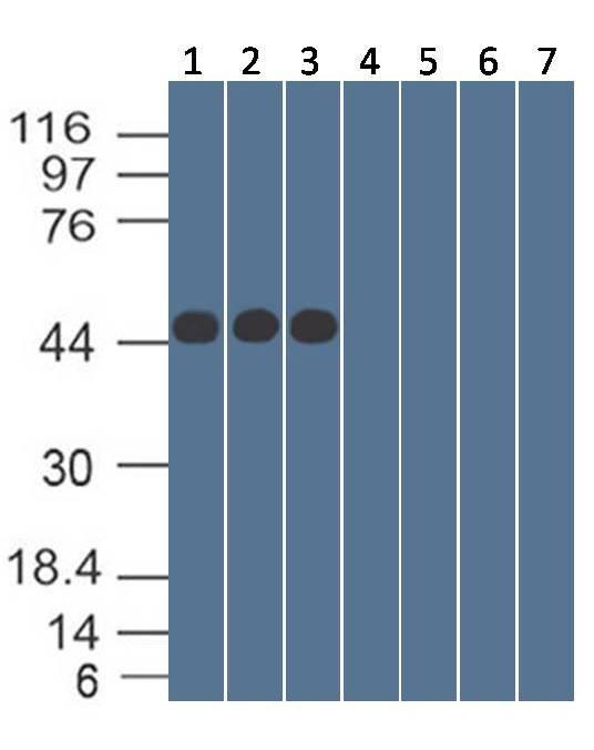 Monoclonal Antibody to SARS-CoV-2 nucleocapsid Protein (Clone: ABM3H4.1F7)