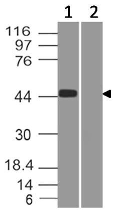 Anti-SARS CoV2 Spike RBD Antibody (Clone: ABM6G1.1A2)