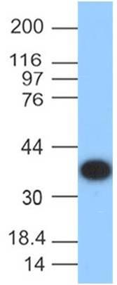 Protein A Monoclonal Antibody (Clone: ABM2A4.1E3)