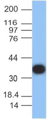 Protein A Monoclonal Antibody (Clone: ABM4B3.1G3)