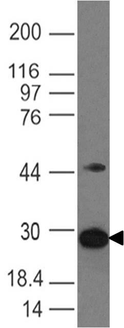 Monoclonal Antibody to D4-GDI  (Clone: ABM11F9)