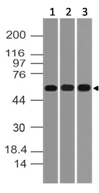 Monoclonal Antibody to AKT1 (Clone: ABM12F7)