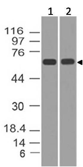 Monoclonal Antibody to p73 (Clone: ABM1G28)