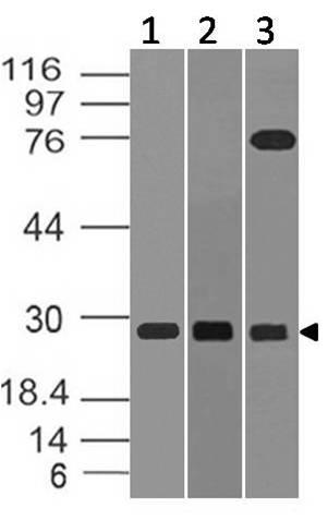 Monoclonal Antibody to TRAIL (Clone: ABM1B29)