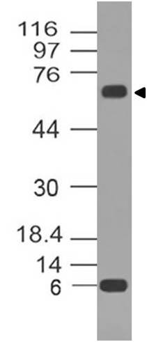 Monoclonal Antibody to p73 (Clone: ABM13D1)
