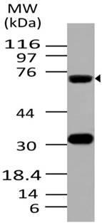Monoclonal Antibody to ATF6 (Clone: ABM1A40)