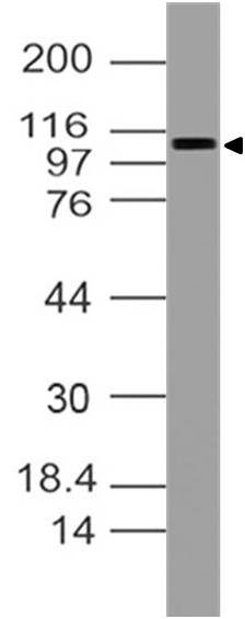 Monoclonal antibody to RB1 (Clone: ABM17H9 )