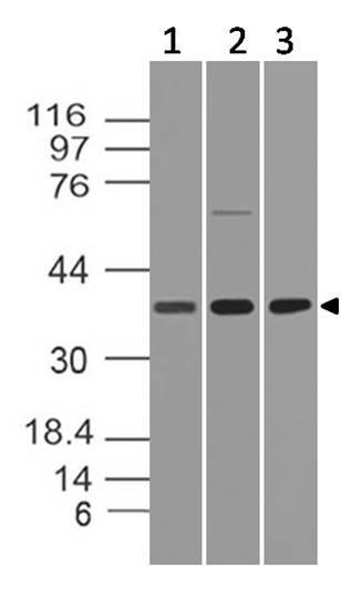 Monoclonal Antibody to HtrA2 (Clone: ABM1H83)