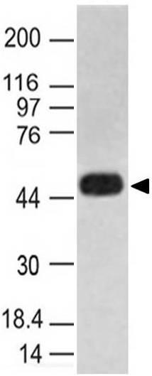 Monoclonal Antibody to Caspase-1 (Clone: ABM1B93)