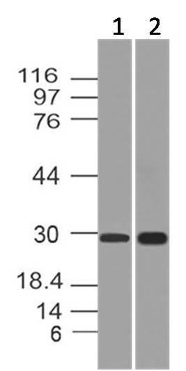 Monoclonal Antibody to APIP  (Clone: ABM19C7)