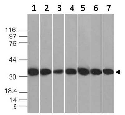 Monoclonal antibody to  Annexin V (Clone: ABM4C5.2B4)