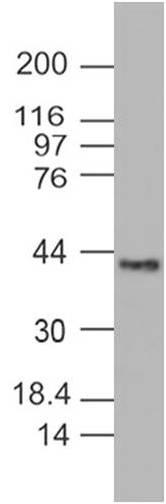 Monoclonal Antibody to PINK1 (Clone: ABM5D85)