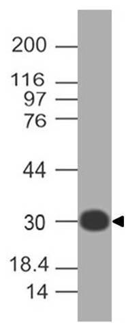 Monoclonal antibody to RLIP (Clone: ABM6D5.1E4)