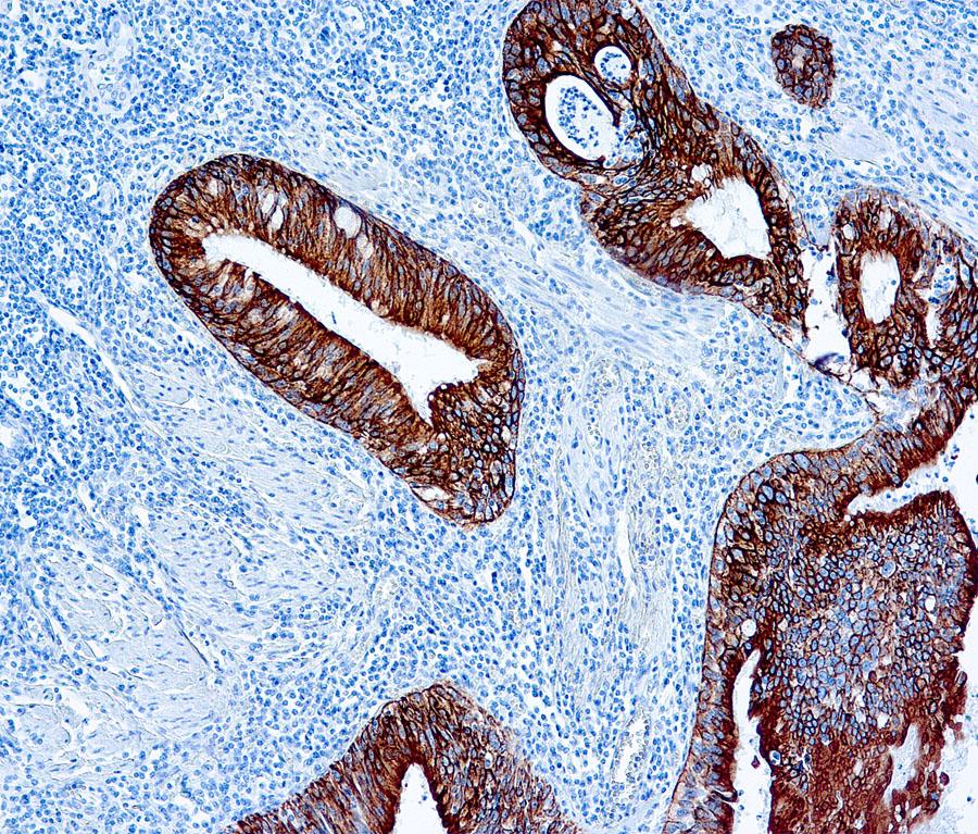 Mouse Monoclonal Antibody to Cytokeratin AE1/AE3(Clone: AE1+AE3)(Discontinued)